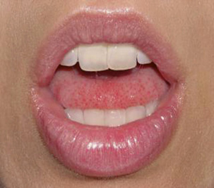 A photo of lips with gloss.